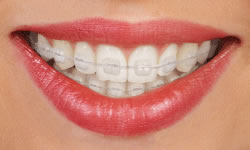 clear ceramic braces