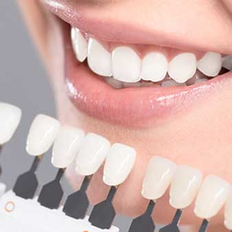 The Dentists' Office Tooth Whitening