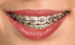 self ligating braces